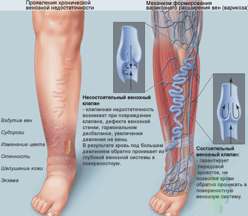 Варикоз вен на ногах: лечение, народные средства 79