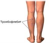 Избавление от тромбофлебита с помощью средств народной медицины
