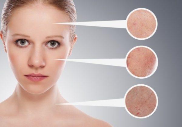 Как клотримазол отбеливает кожу