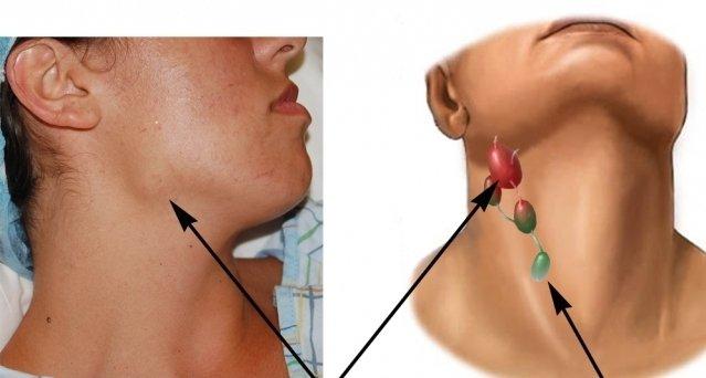 воспаление лимфоузлов фото