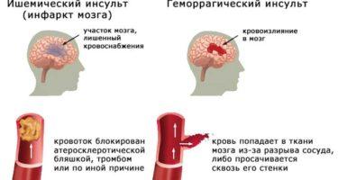 Инсульт и микроинсульт, перенесенные на ногах