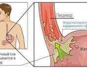 Недостаточность кардии: признаки, лечение, профилактика