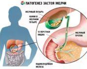 Симптомы застоя желчи и способы устранения холестаза